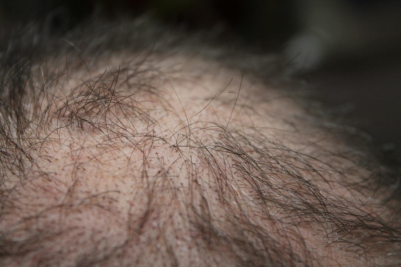 haaruitval door stress is een veelvoorkomend symptoom. Haartransplantatie is een permanente oplossing.